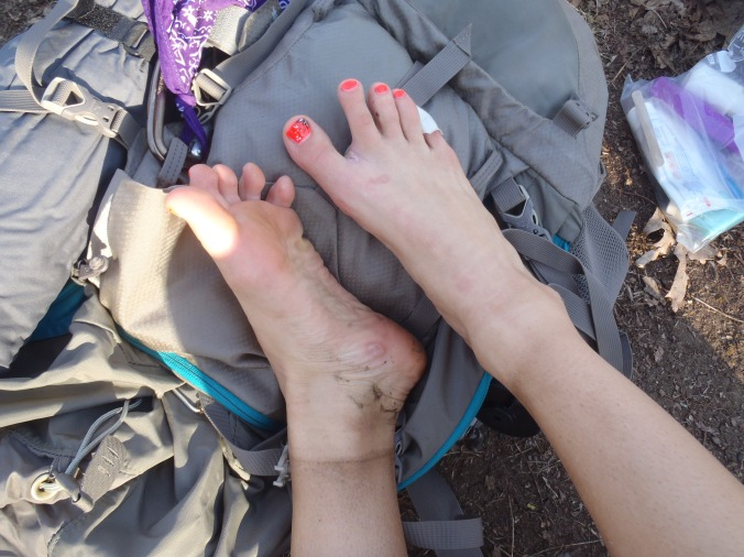 Lindsay's feet after the first 5 days.